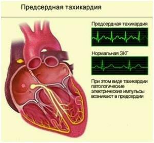 Суправентрикулярная пароксизмальная тахикардия