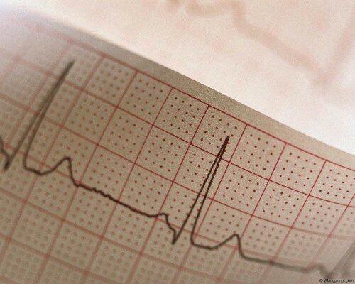 Медицинская диагностика инфаркта у мужчин