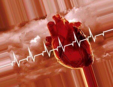 стадия инфаркта миокарда