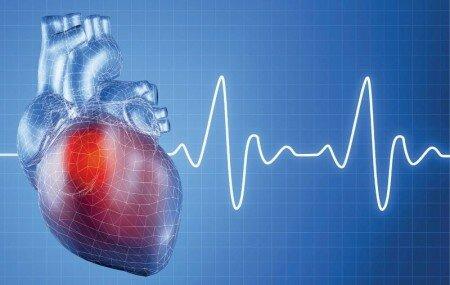 инфаркт миокарда трансмуральный q