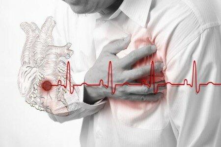 Обширный тяжелый инфаркт