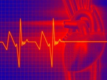 вторая фаза инфаркта