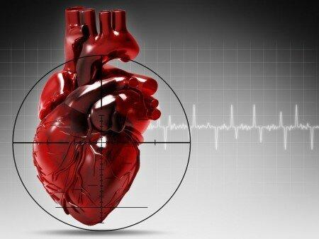 инфаркт миокарда классификация