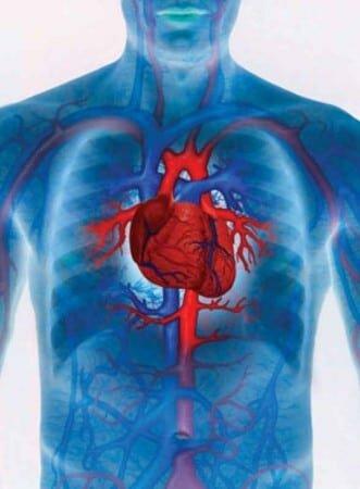 формы инфаркта миокарда
