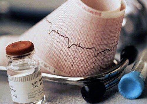 Ишемические расстройства отображенные на ЭКГ