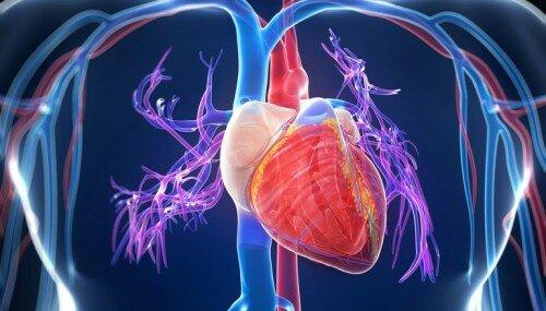 классификация инфаркта