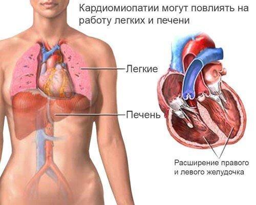 влияние дисгормональной кардиомиопатии на другие органы