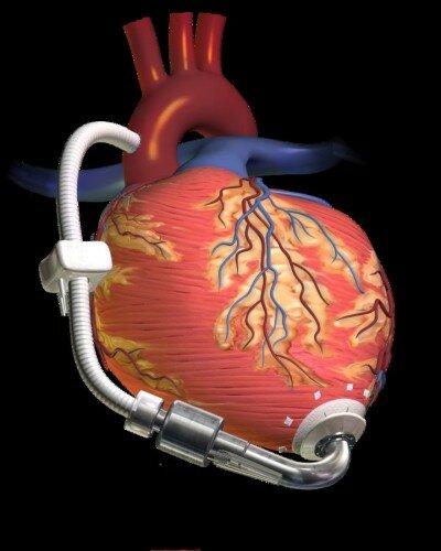 кардиостимулятор установлен на сердце